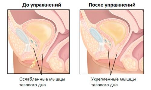muscolo tirato nella zona dellutero